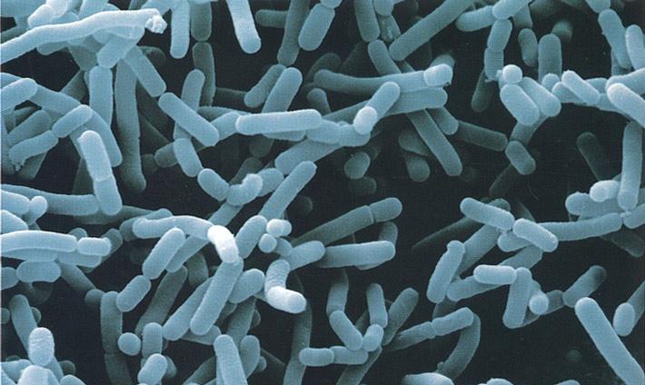 Alimentos Fermentados Bacterias